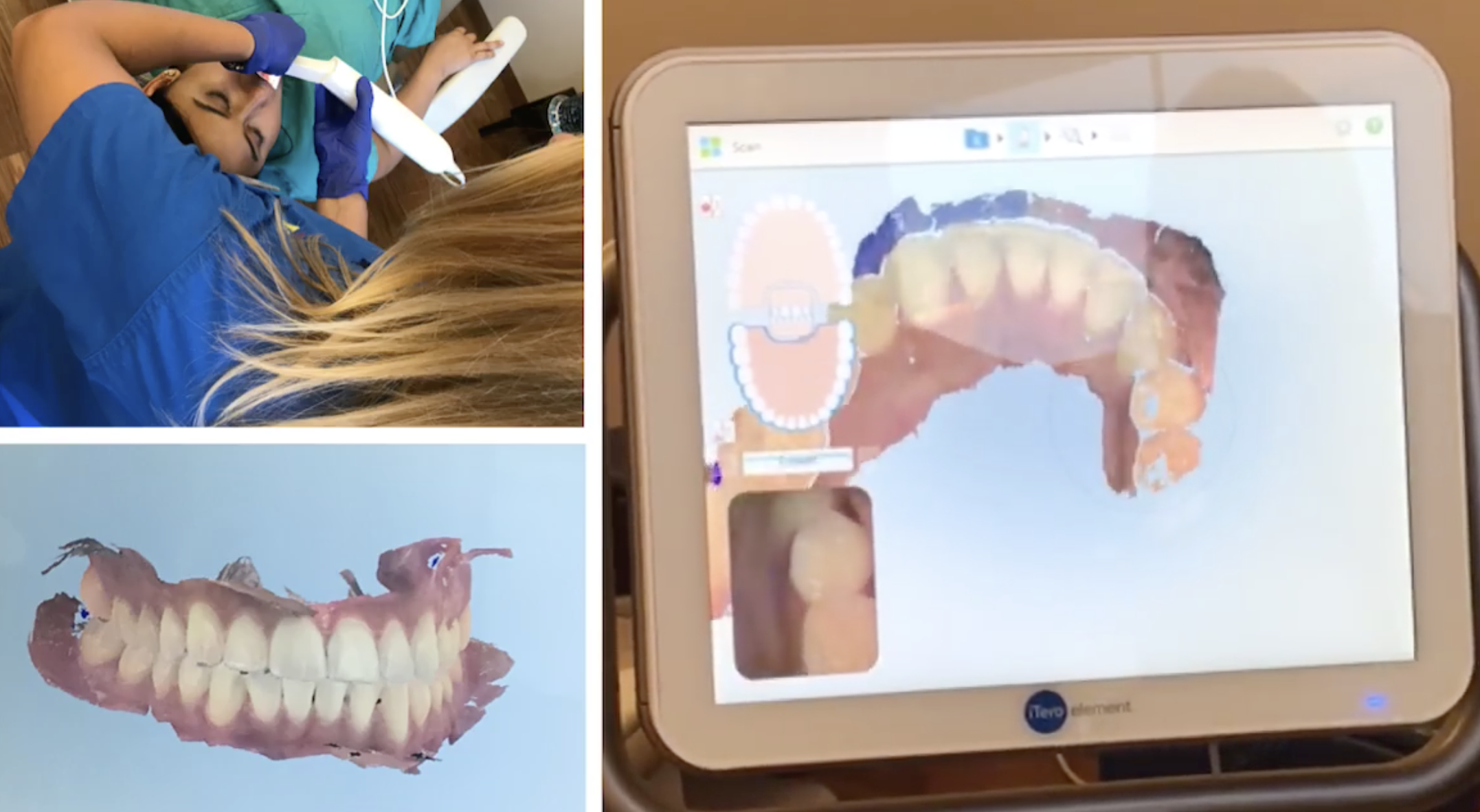Why We Use AcceleDent®, i-CAT™, iTero®, Invisalign® and SureSmile® at Innovative Orthodontic Centers