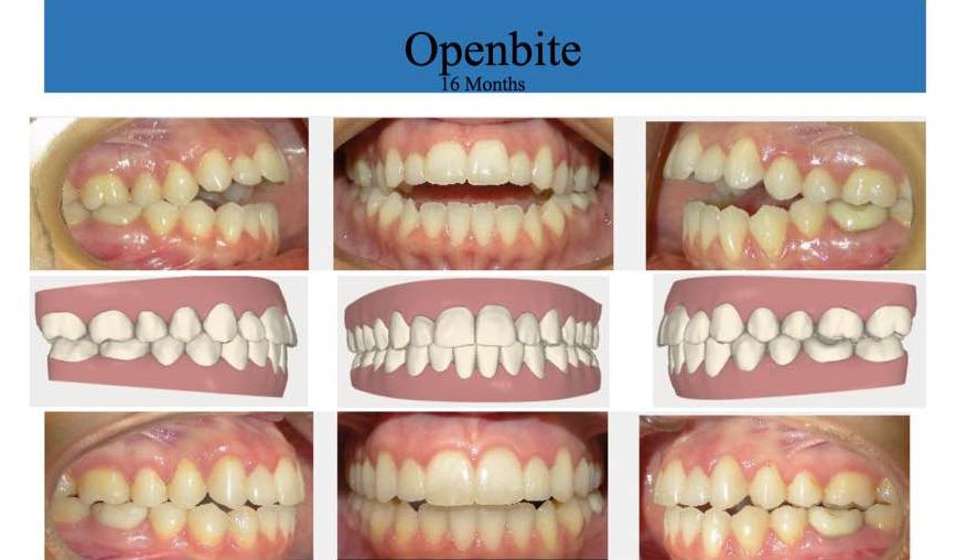 How Do Braces Affect Your Face
